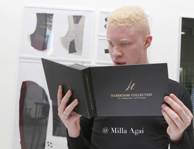Shaun Ross - The First Male Albino Pro Model